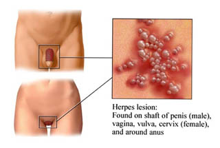 how to treat herpes on penis