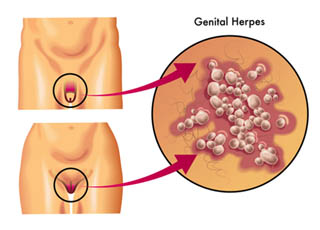 The Helps Of Genital Herpes Pictures